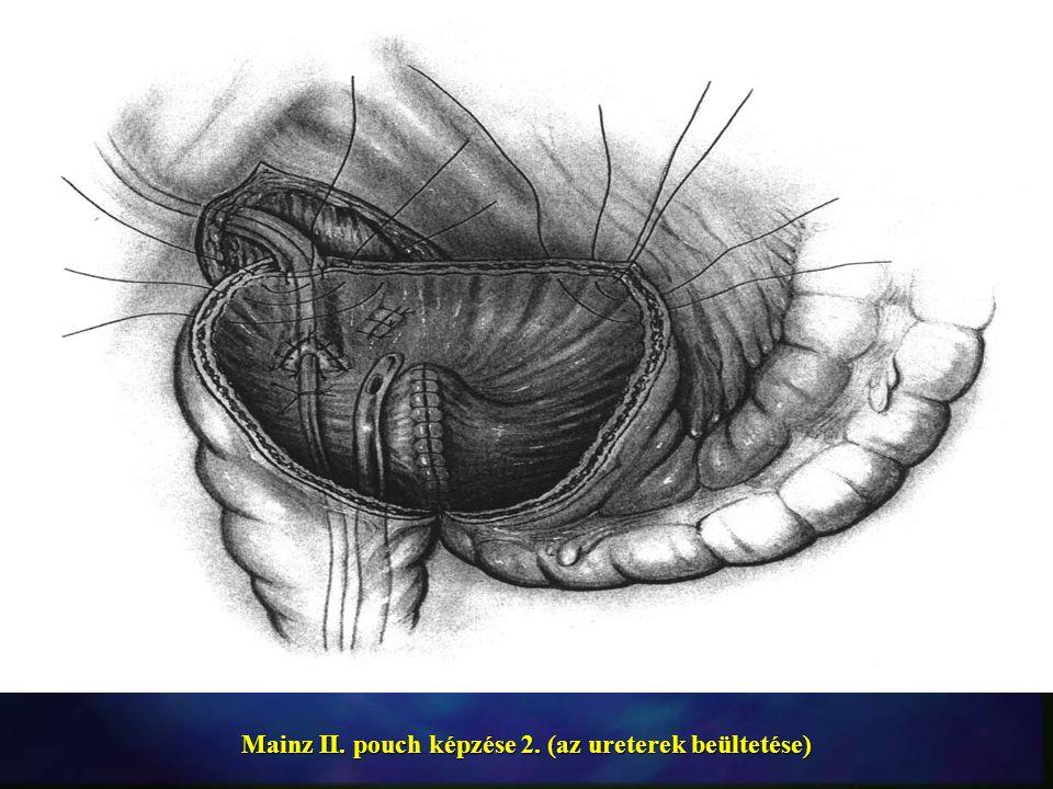 Mainz II. pouch képzése 2. (az ureterek beültetése)