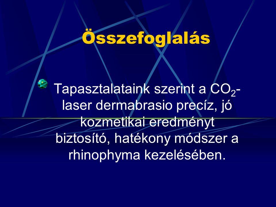 Összefoglalás Tapasztalataink szerint a CO 2 - laser dermabrasio precíz, jó kozmetikai eredményt biztosító, hatékony módszer a rhinophyma kezelésében.