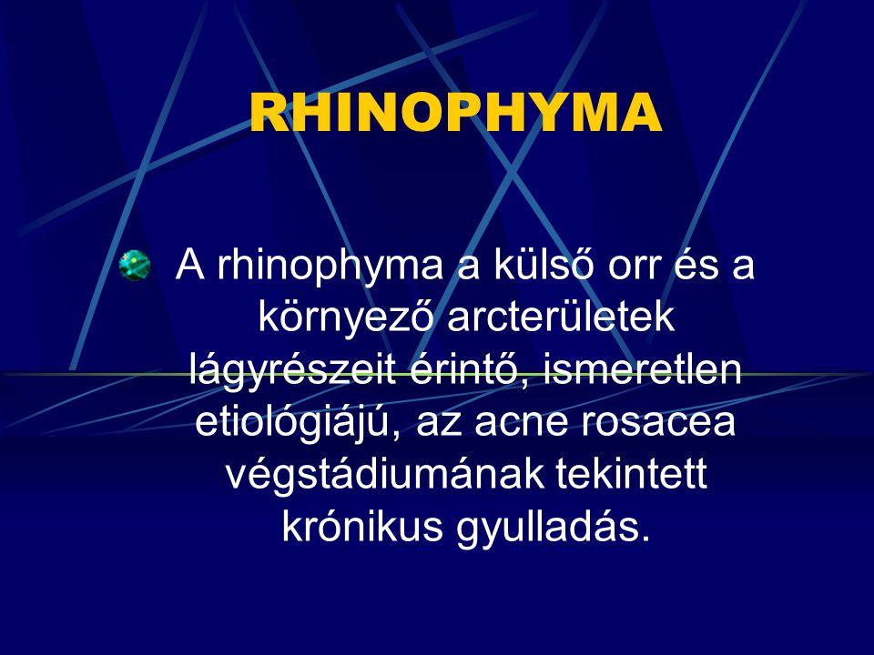 RHINOPHYMA A rhinophyma a külső orr és a környező arcterületek lágyrészeit érintő, ismeretlen etiológiájú, az acne rosacea végstádiumának tekintett kr