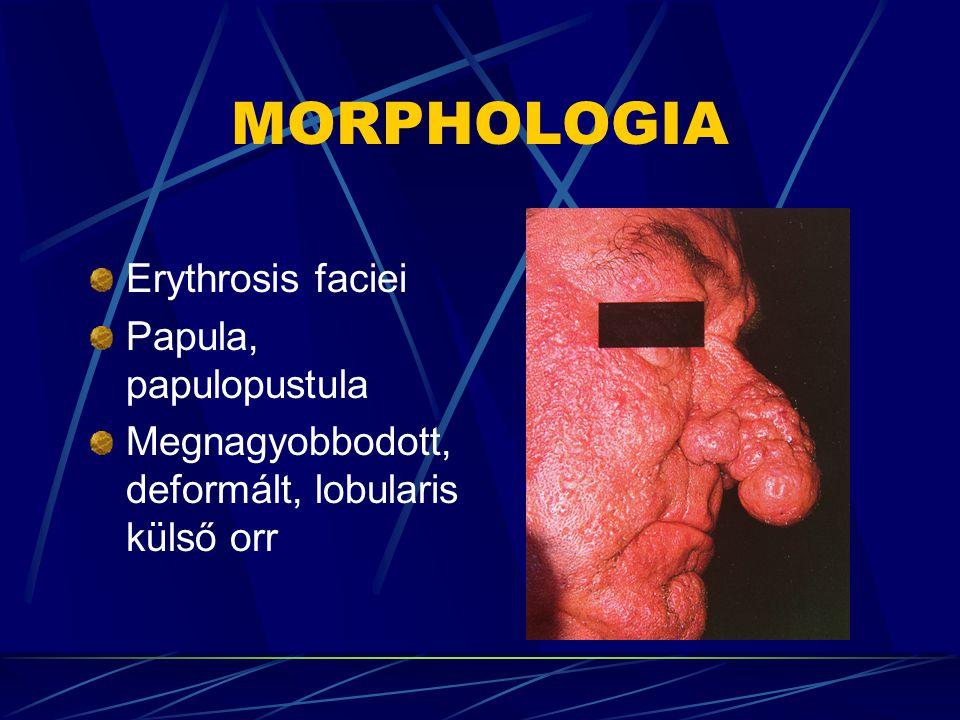 MORPHOLOGIA Erythrosis faciei Papula, papulopustula Megnagyobbodott, deformált, lobularis külső orr