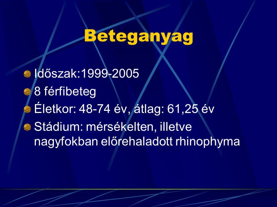 Beteganyag Időszak:1999-2005 8 férfibeteg Életkor: 48-74 év, átlag: 61,25 év Stádium: mérsékelten, illetve nagyfokban előrehaladott rhinophyma