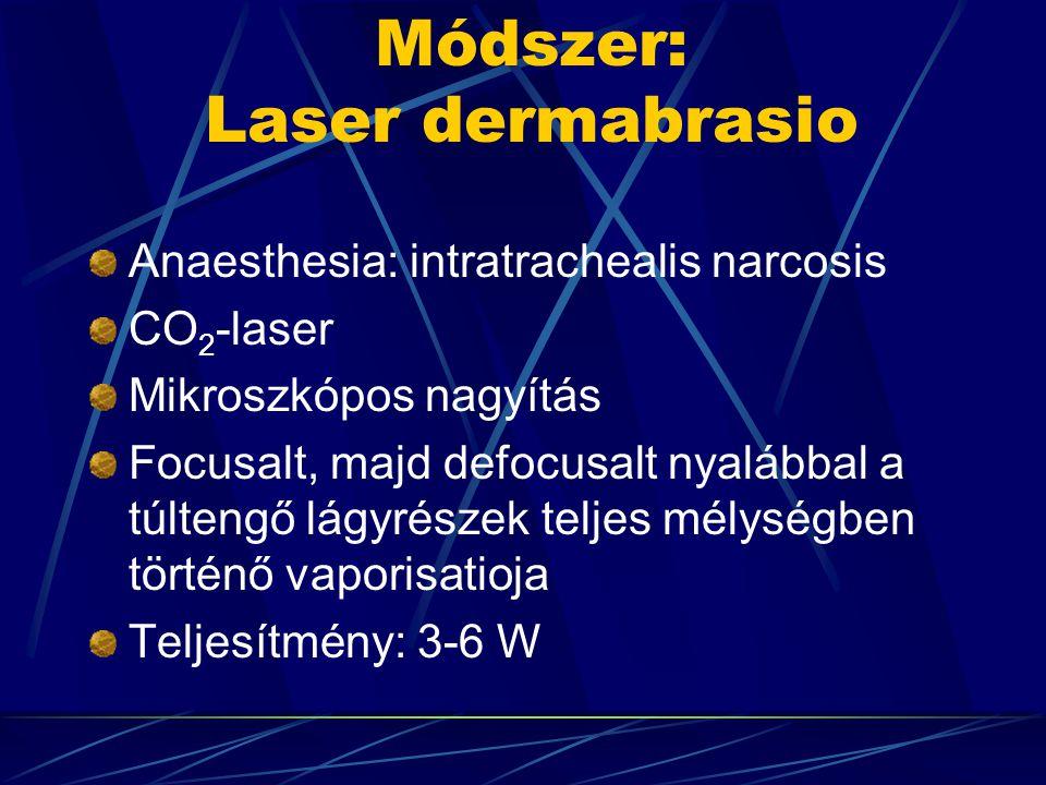 Módszer: Laser dermabrasio Anaesthesia: intratrachealis narcosis CO 2 -laser Mikroszkópos nagyítás Focusalt, majd defocusalt nyalábbal a túltengő lágyrészek teljes mélységben történő vaporisatioja Teljesítmény: 3-6 W