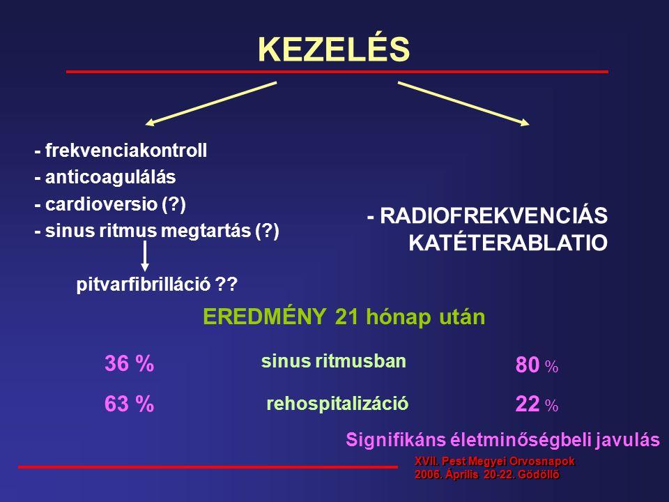 KEZELÉS - frekvenciakontroll - anticoagulálás - cardioversio (?) - sinus ritmus megtartás (?) pitvarfibrilláció ?? - RADIOFREKVENCIÁS KATÉTERABLATIO E