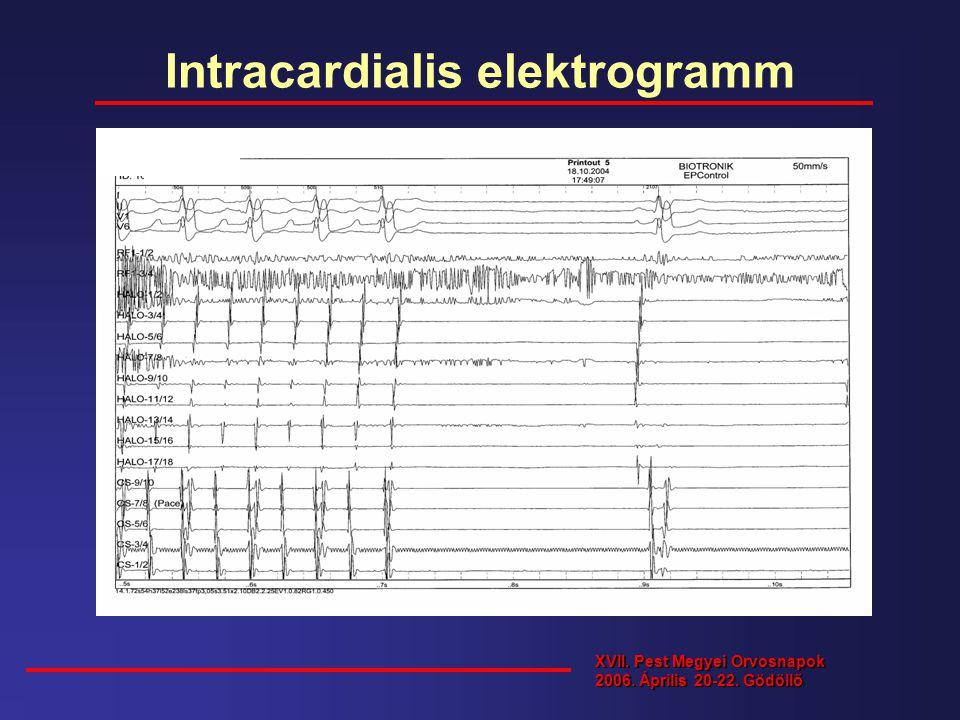 Intracardialis elektrogramm XVII. Pest Megyei Orvosnapok 2006. Április 20-22. Gödöllő