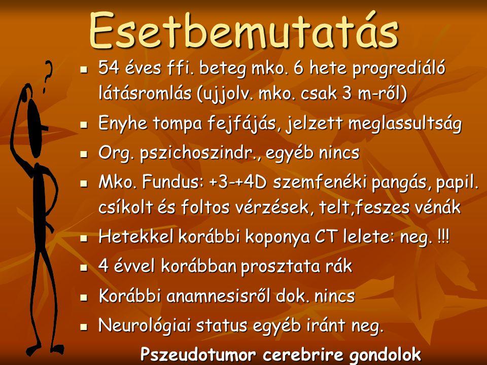 Készítette: Dr. Anwar Aimen Szent Rókus Kh., Neurológia Oszt. XVII. Pest Megyei Orvosnapok, Gödöllő, 2006.05.21. Készítette: Dr. Anwar Aimen Szent Rók
