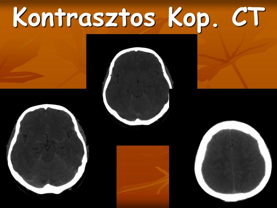 Kontrasztos Kop. CT