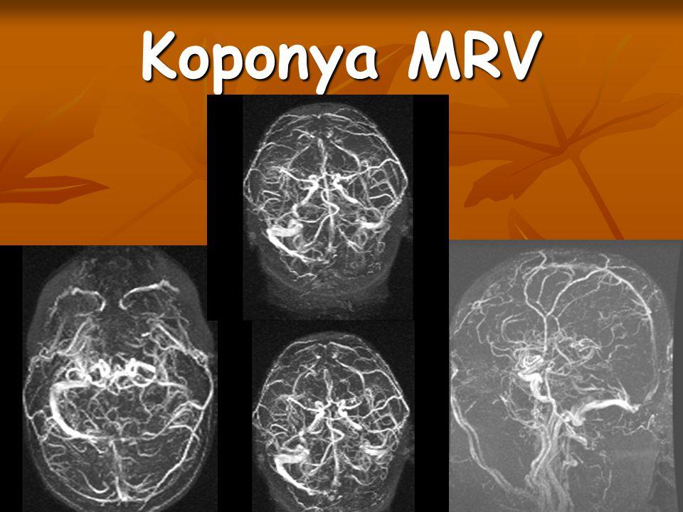 Koponya MRV