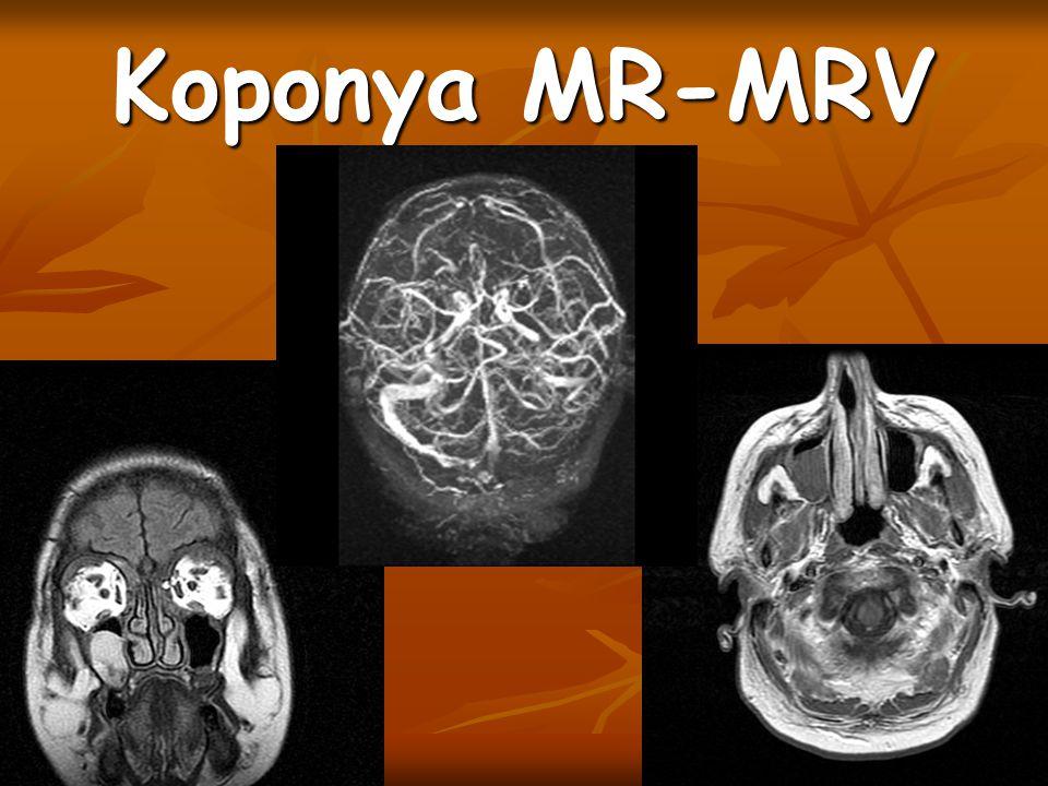 Koponya MR-MRV