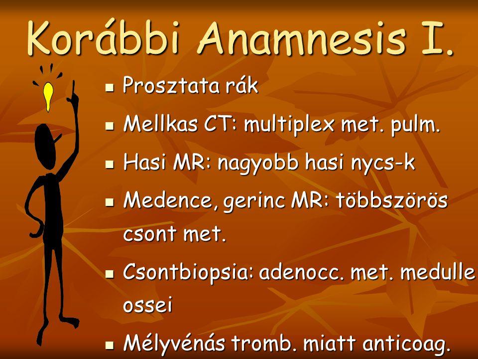 Prosztata rák Prosztata rák Mellkas CT: multiplex met.