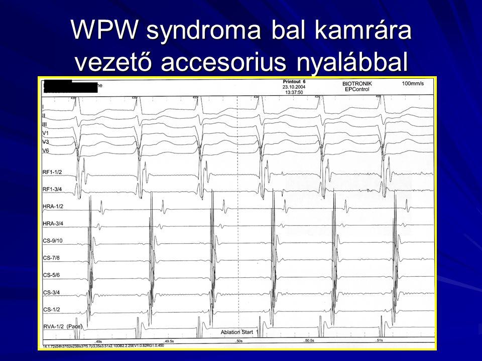 WPW syndroma bal kamrára vezető accesorius nyalábbal