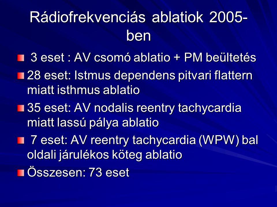 Rádiofrekvenciás ablatiok 2005- ben 3 eset : AV csomó ablatio + PM beültetés 3 eset : AV csomó ablatio + PM beültetés 28 eset: Istmus dependens pitvar