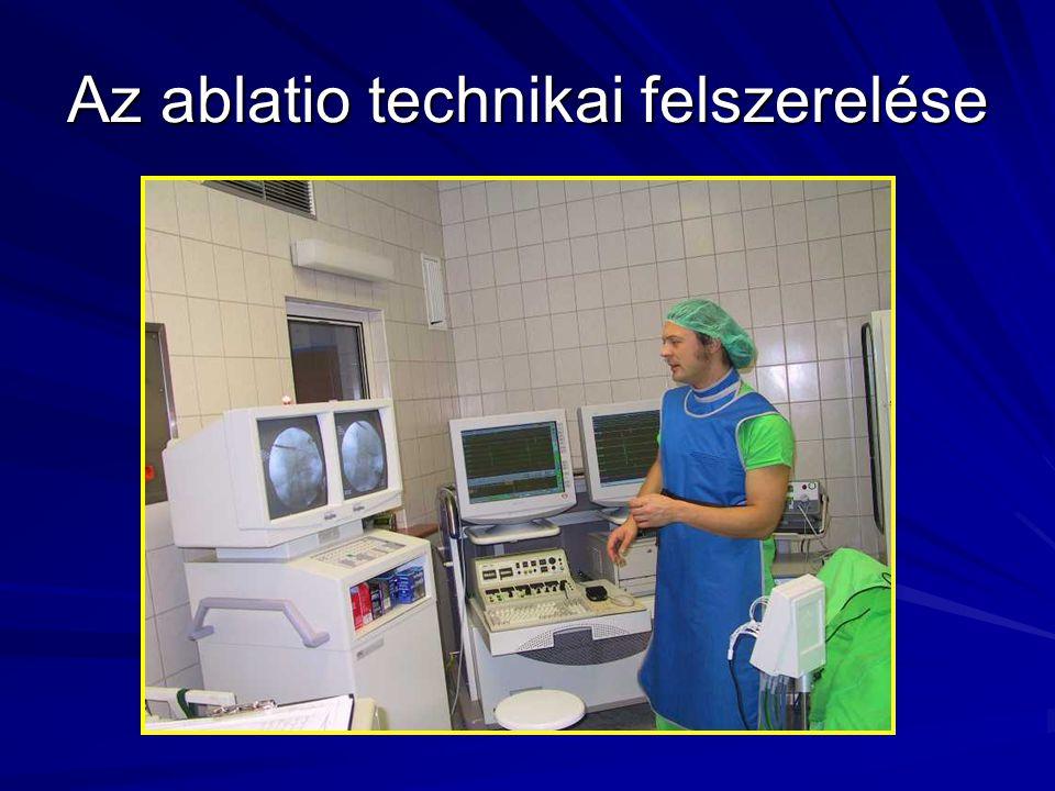 Az ablatio technikai felszerelése