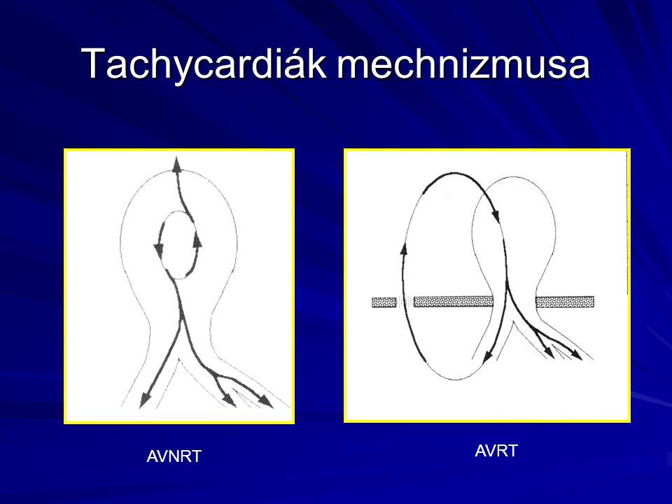 Tachycardiák mechnizmusa AVNRT AVRT