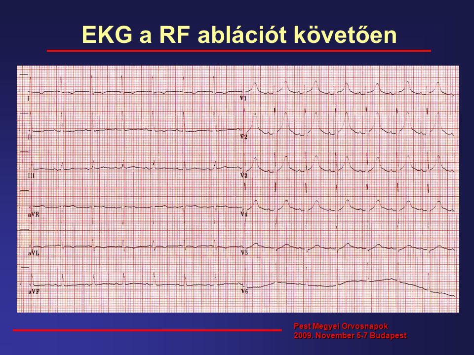 EKG a RF ablációt követően Pest Megyei Orvosnapok 2009. November 5-7 Budapest