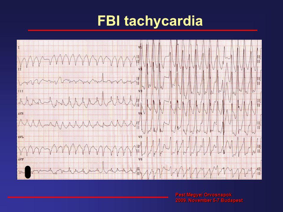 FBI tachycardia Pest Megyei Orvosnapok 2009. November 5-7 Budapest