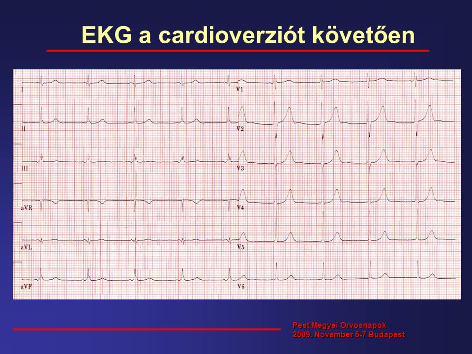 EKG a cardioverziót követően Pest Megyei Orvosnapok 2009. November 5-7 Budapest