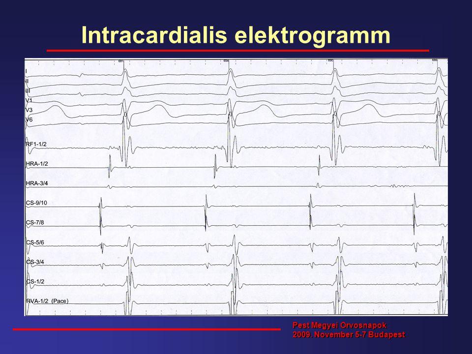 Intracardialis elektrogramm Pest Megyei Orvosnapok 2009. November 5-7 Budapest