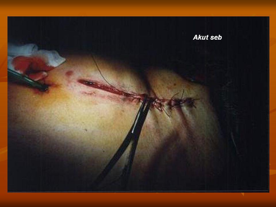 Elsődleges - Éles, steril eszközzel ejtett metszésekkor jön létre - Nincs szövetroncsolás - A sebszélek összefekszenek - Nincs komolyabb feszülés - Fertőzés nem zavarja az összeilleszkedést - Az átvágott vérerekből kilépő vér megalvad, fibrin keletkezik Sebgyógyulás