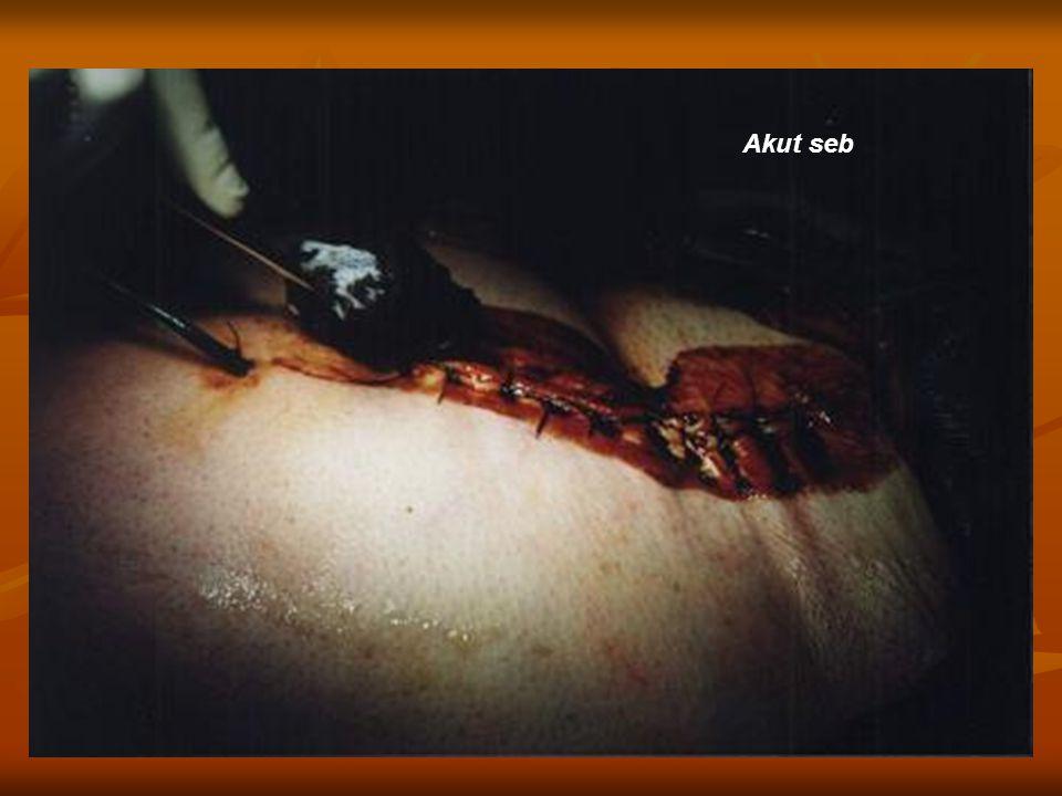 Sebek (fennállásuk időtartama szerint) Akut Műtéti sebek Égési sérülések Traumás eredetű sebek Krónikus Lábszárfekélyek Decubitus Gyulladásos sebek Neuropathiás sebek Kémiai égések Égési sérülések Anorectalis abscessusok Analis fistulák Diabeteses láb fekélyes lváltozásai