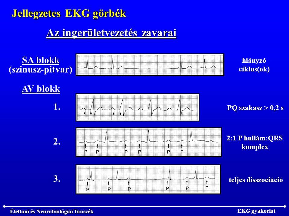 Élettani és Neurobiológiai Tanszék EKG gyakorlat Jellegzetes EKG görbék Az ingerületvezetés zavarai SA blokk (szinusz-pitvar) AV blokk hiányzó ciklus(ok) 1.