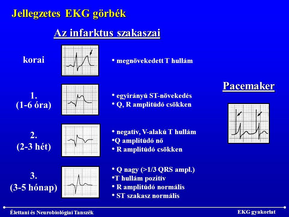 Élettani és Neurobiológiai Tanszék EKG gyakorlat Jellegzetes EKG görbék Az infarktus szakaszai korai megnövekedett T hullám 1.