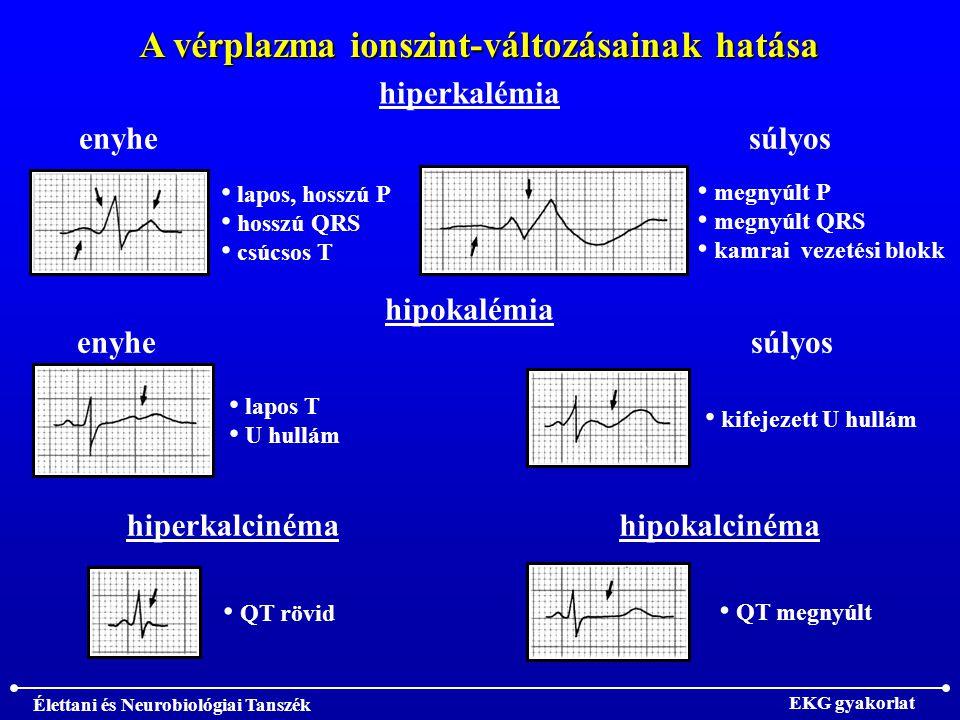 Élettani és Neurobiológiai Tanszék EKG gyakorlat A vérplazma ionszint-változásainak hatása hiperkalémia enyhe lapos, hosszú P hosszú QRS csúcsos T súlyos megnyúlt P megnyúlt QRS kamrai vezetési blokk hipokalémia enyhe lapos T U hullám súlyos kifejezett U hullám hiperkalcinéma QT rövid hipokalcinéma QT megnyúlt