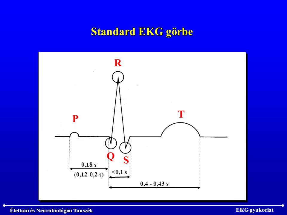 Élettani és Neurobiológiai Tanszék EKG gyakorlat Standard EKG görbe P R Q S T  0,1 s 0,4 - 0,43 s 0,18 s (0,12-0,2 s)