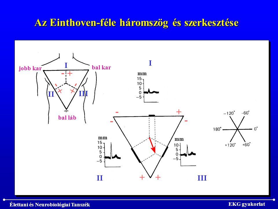 Élettani és Neurobiológiai Tanszék EKG gyakorlat Az Einthoven-féle háromszög és szerkesztése I IIIII - - - + ++ mm jobb kar bal kar bal láb I II III - + - + - +