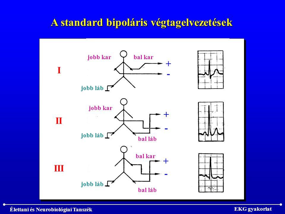 Élettani és Neurobiológiai Tanszék EKG gyakorlat A standard bipoláris végtagelvezetések I II III jobb kar bal kar bal láb jobb láb + - - + - +