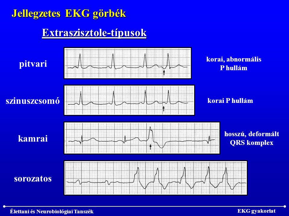 Élettani és Neurobiológiai Tanszék EKG gyakorlat Jellegzetes EKG görbék Extraszisztole-típusok pitvari szinuszcsomó kamrai sorozatos korai, abnormális P hullám korai P hullám hosszú, deformált QRS komplex