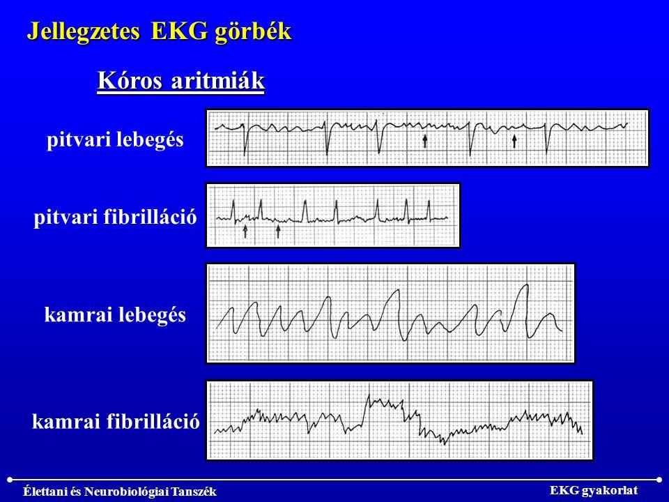 Élettani és Neurobiológiai Tanszék EKG gyakorlat Jellegzetes EKG görbék pitvari fibrilláció Kóros aritmiák pitvari lebegés kamrai lebegés kamrai fibrilláció