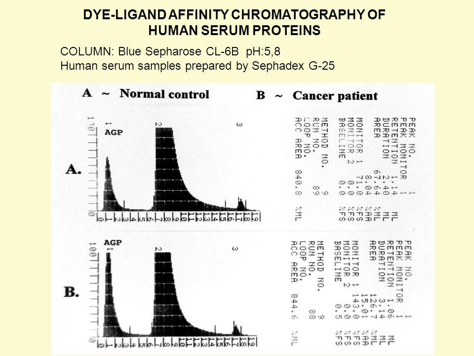 DYE-LIGAND AFFINITY CHROMATOGRAPHY OF HUMAN SERUM PROTEINS COLUMN: Blue Sepharose CL-6B pH:5,8 Human serum samples prepared by Sephadex G-25