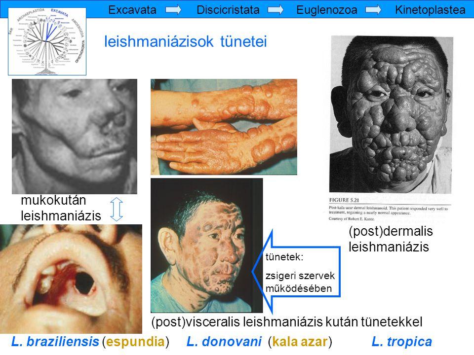 mukokután leishmaniázis (post)visceralis leishmaniázis kután tünetekkel (post)dermalis leishmaniázis L. braziliensis (espundia) L. donovani (kala azar