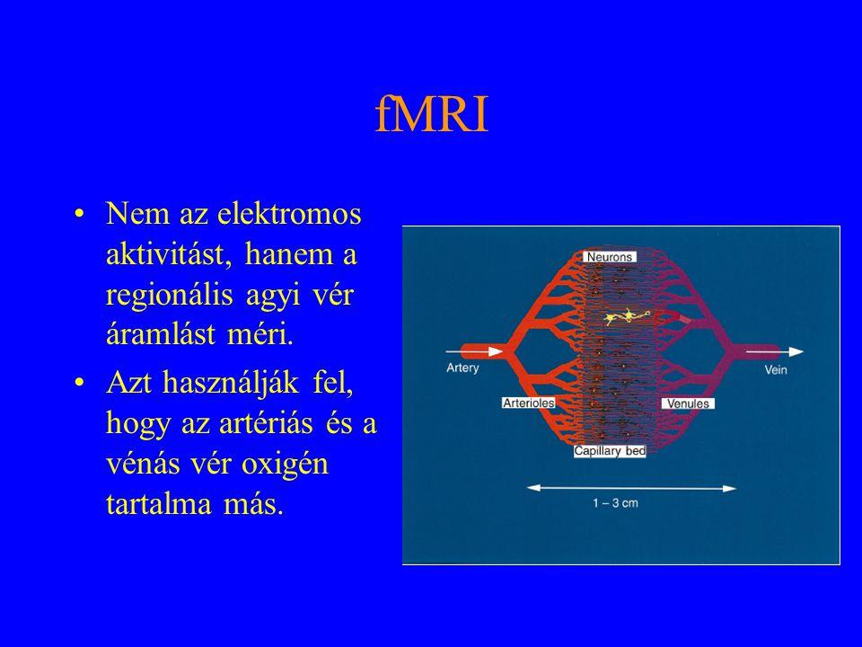 fMRI Nem az elektromos aktivitást, hanem a regionális agyi vér áramlást méri. Azt használják fel, hogy az artériás és a vénás vér oxigén tartalma más.