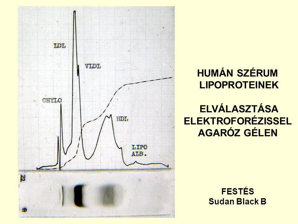 HUMÁN SZÉRUM LIPOPROTEINEK ELVÁLASZTÁSA ELEKTROFORÉZISSEL AGARÓZ GÉLEN FESTÉS Sudan Black B