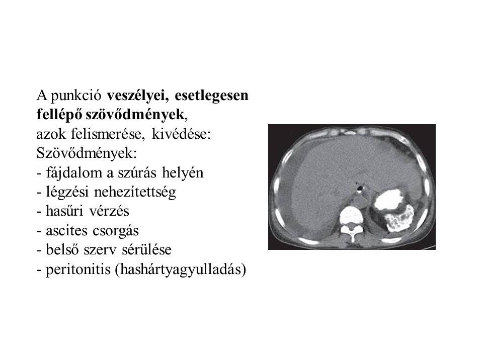 A punkció veszélyei, esetlegesen fellépő szövődmények, azok felismerése, kivédése: Szövődmények: - fájdalom a szúrás helyén - légzési nehezítettség -