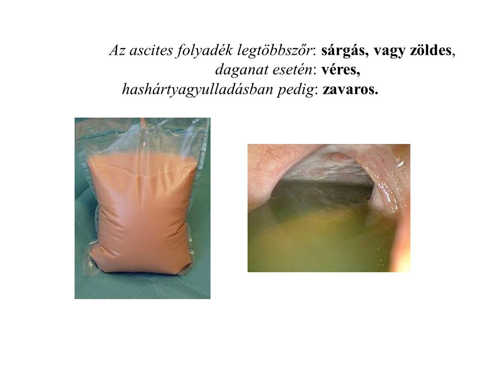 Az ascites folyadék legtöbbszőr: sárgás, vagy zöldes, daganat esetén: véres, hashártyagyulladásban pedig: zavaros.