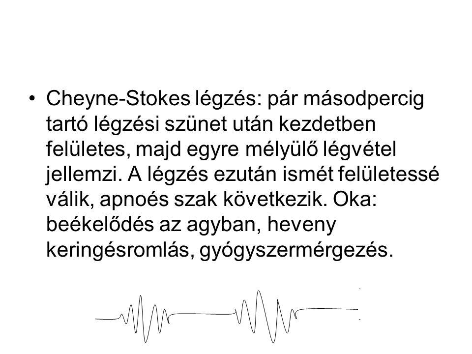 Cheyne-Stokes légzés: pár másodpercig tartó légzési szünet után kezdetben felületes, majd egyre mélyülő légvétel jellemzi. A légzés ezután ismét felül