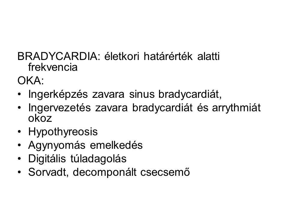 BRADYCARDIA: életkori határérték alatti frekvencia OKA: Ingerképzés zavara sinus bradycardiát, Ingervezetés zavara bradycardiát és arrythmiát okoz Hyp