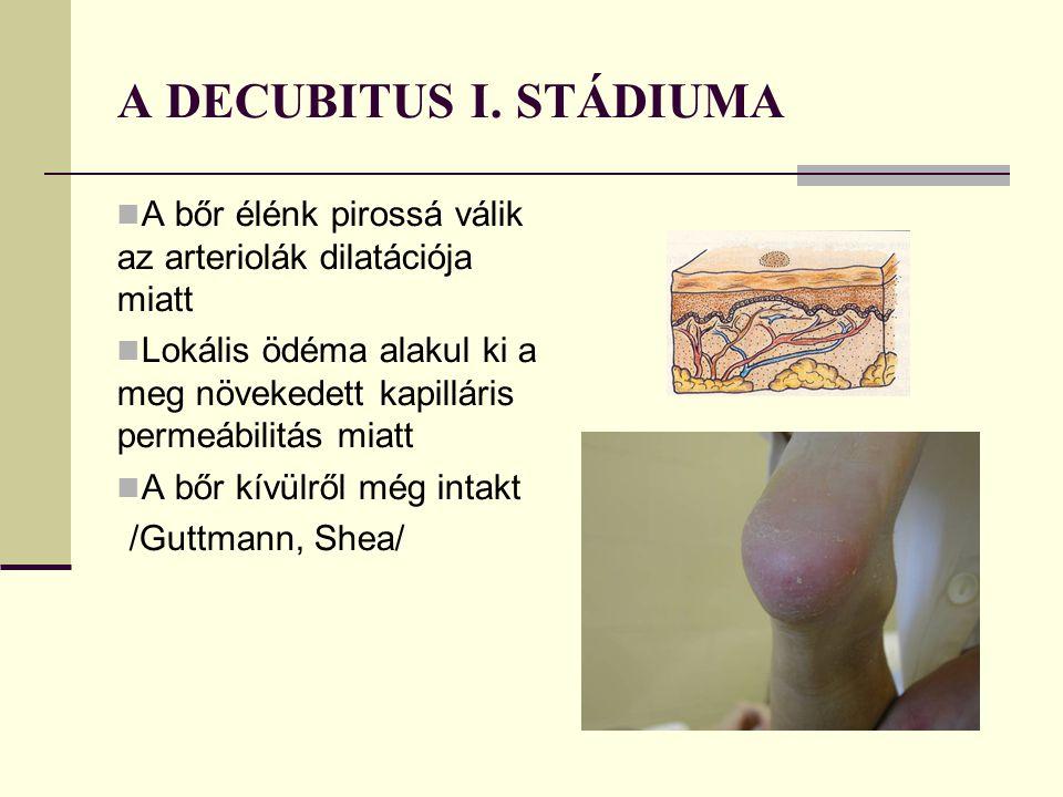 A DECUBITUS I.