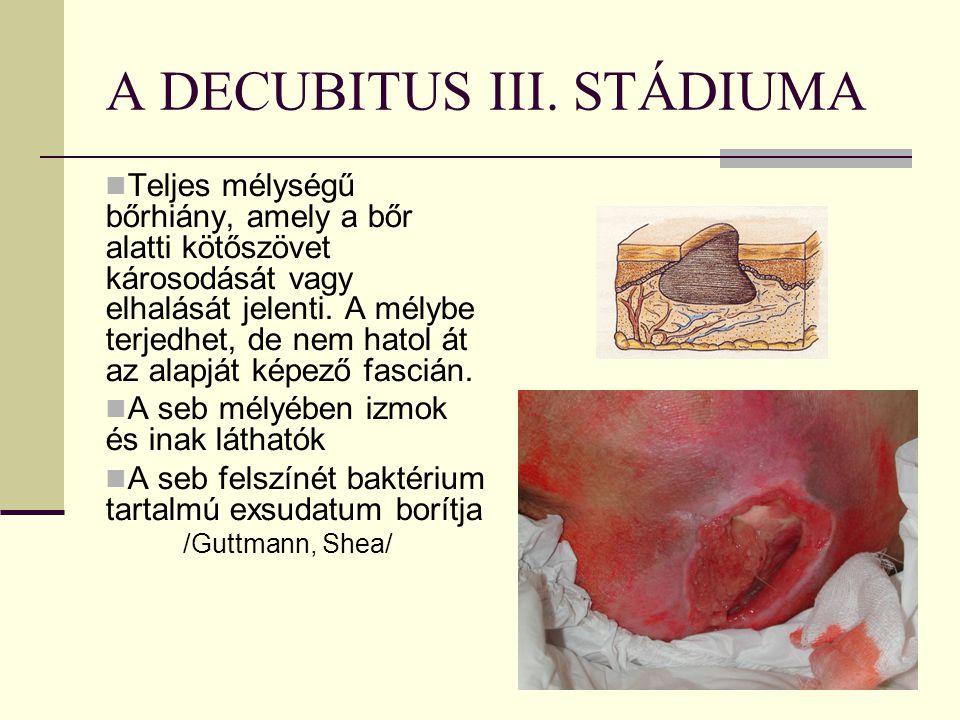 A DECUBITUS III.