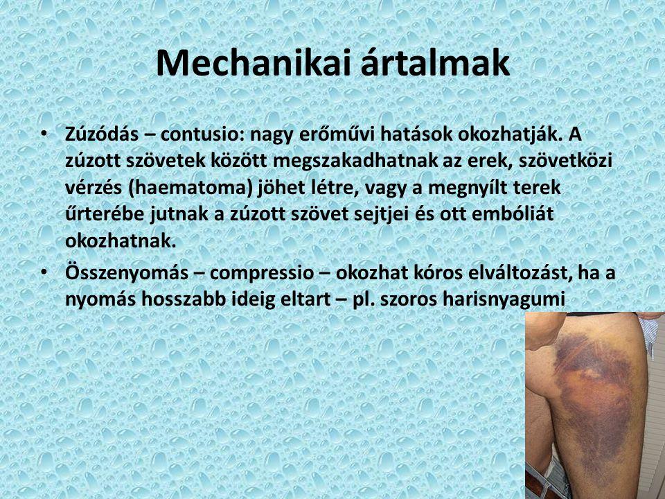 Mechanikai ártalmak Zúzódás – contusio: nagy erőművi hatások okozhatják. A zúzott szövetek között megszakadhatnak az erek, szövetközi vérzés (haematom