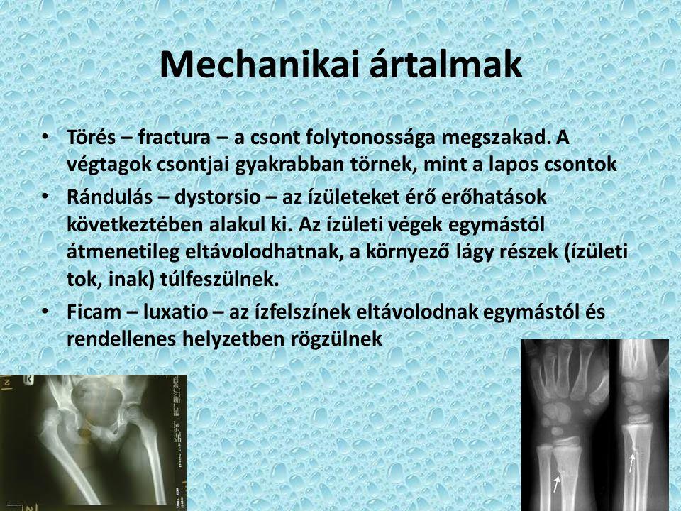 Mechanikai ártalmak Törés – fractura – a csont folytonossága megszakad. A végtagok csontjai gyakrabban törnek, mint a lapos csontok Rándulás – dystors