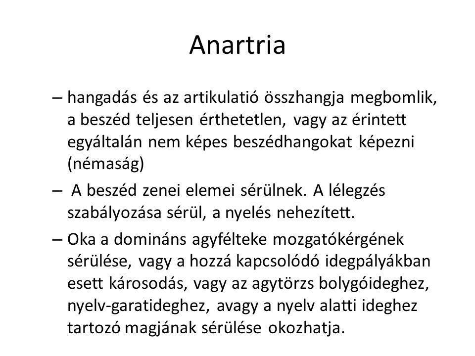 Anartria – hangadás és az artikulatió összhangja megbomlik, a beszéd teljesen érthetetlen, vagy az érintett egyáltalán nem képes beszédhangokat képezn