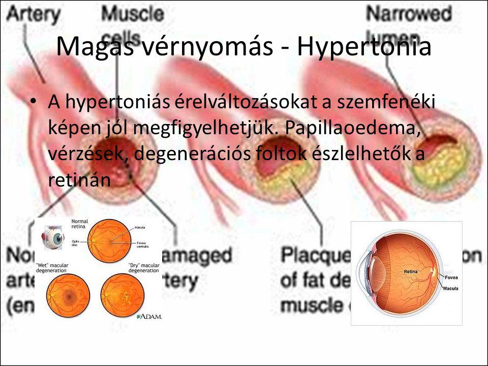 Magas vérnyomás - Hypertonia A hypertoniás érelváltozásokat a szemfenéki képen jól megfigyelhetjük. Papillaoedema, vérzések, degenerációs foltok észle