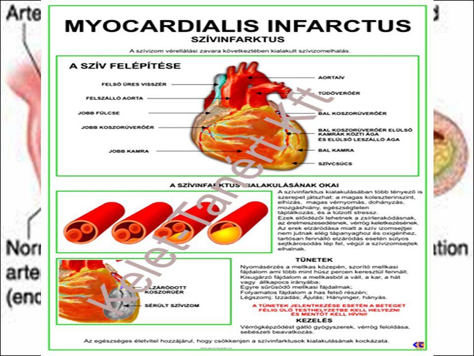 Érelmeszesedés – arteriosclerosis Az agyi erek sclerosisa a szellemi tevékenység csökkenését, emlékezetzavart okoz, ha magas vérnyomáshoz párosul, agyvérzéshez vezethet (apoplexia cerebri) A veseerek sclerosisa zsugorvesét (a szövet nagy része értéktelen hegszövet) és hirtelen fellépő magas vérnyomást okoz