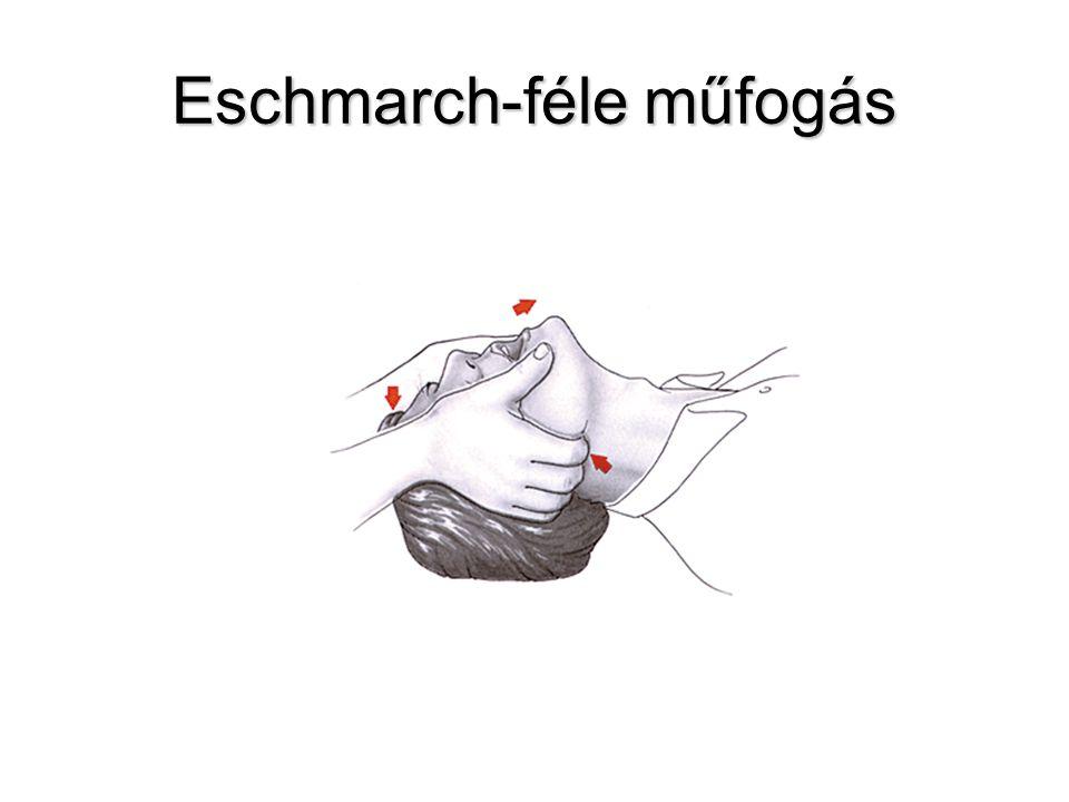 Eschmarch-féle műfogás