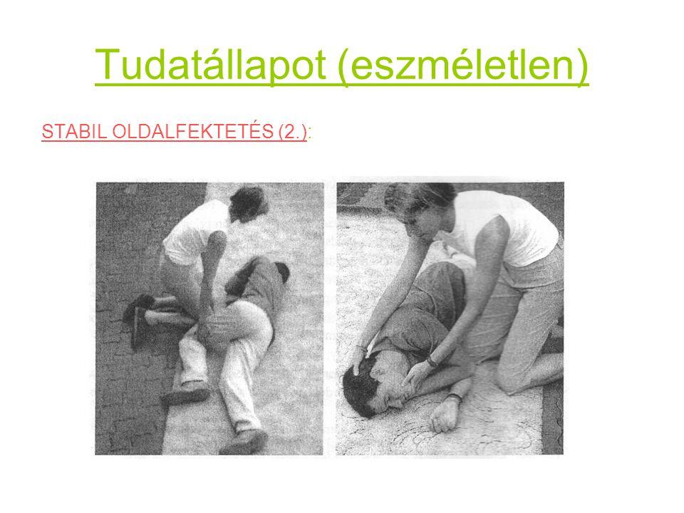 Tudatállapot (eszméletlen) STABIL OLDALFEKTETÉS (2.):