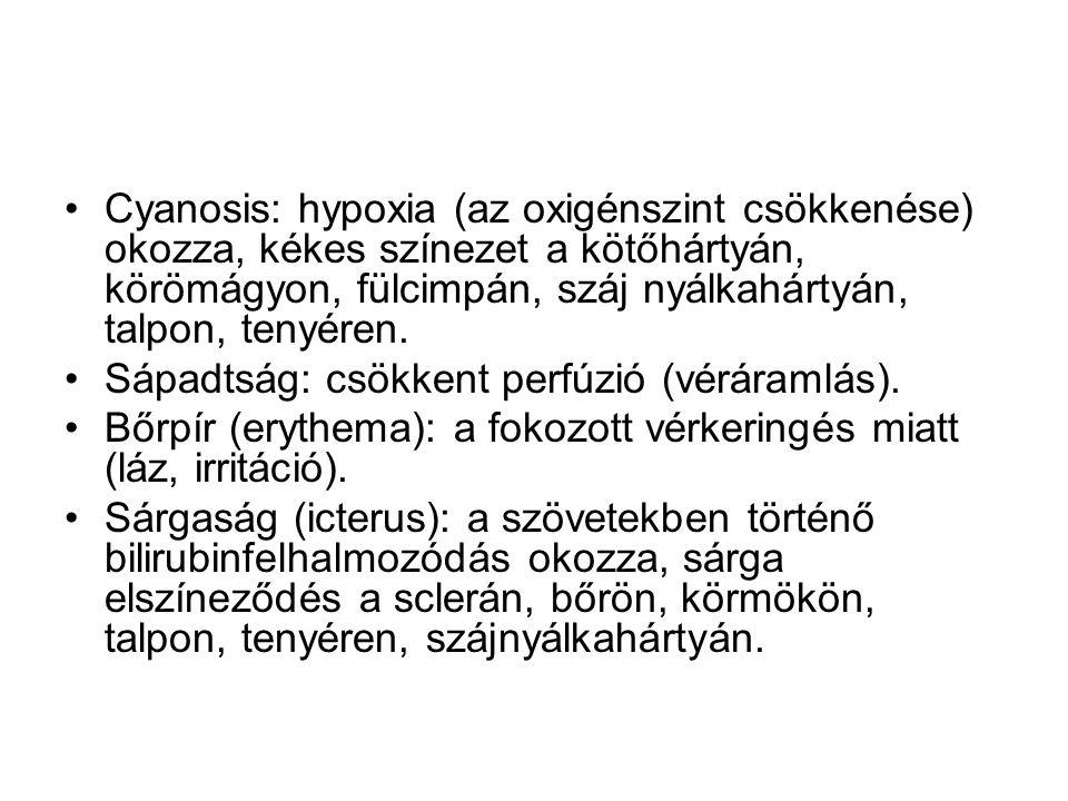 Cyanosis: hypoxia (az oxigénszint csökkenése) okozza, kékes színezet a kötőhártyán, körömágyon, fülcimpán, száj nyálkahártyán, talpon, tenyéren. Sápad