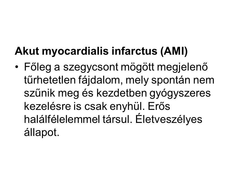 Akut myocardialis infarctus (AMI) Főleg a szegycsont mögött megjelenő tűrhetetlen fájdalom, mely spontán nem szűnik meg és kezdetben gyógyszeres kezel
